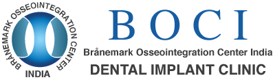best dental implant course & Training in bangalore